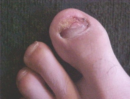 Dead And Discolored Toe Nail Removed From Toe Left Big